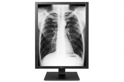 A front view of the LG Diagnostic Monitor model 21HK512D displaying an X-ray of a person's chest